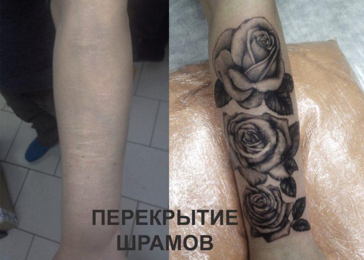 Перекрытие шрамов на руке